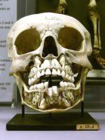 gigantes con doble enfilado de dientes cabezas aplanadas y seis dedos