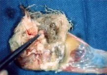 un cerebro en miniatura es encontrado creciendo en el ovario de una joven de 16 anos