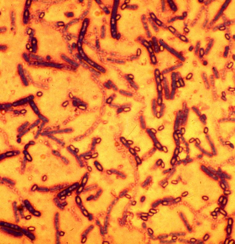 virus del antrax quién creo el antrax como se creo el antrax