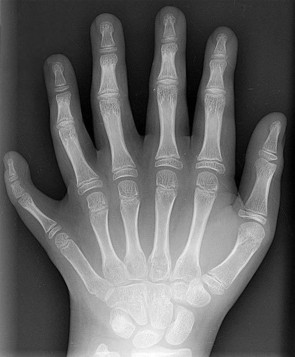civilizaciones perdidas y el fenomeno de los seis dedos