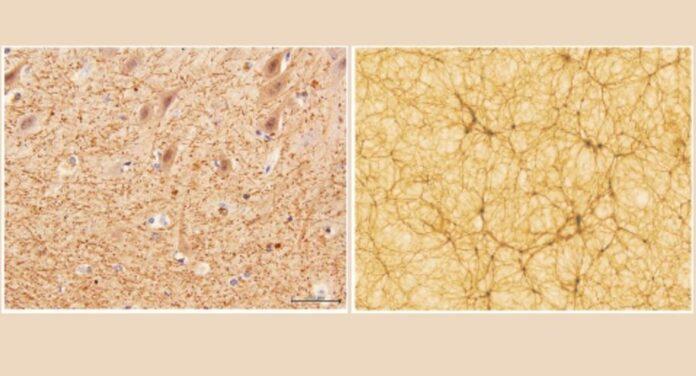 el cerebro humano tiene extranas similitudes con el universo dicen cientificos