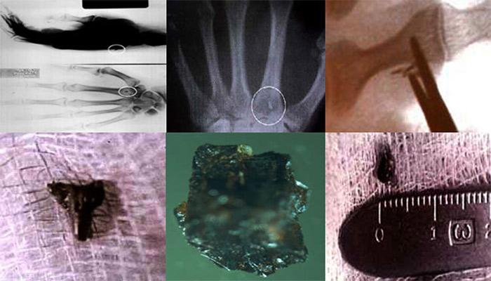 Implantes Extraterrestres: Ex agente de la CIA asegura tener prueba de su presencia